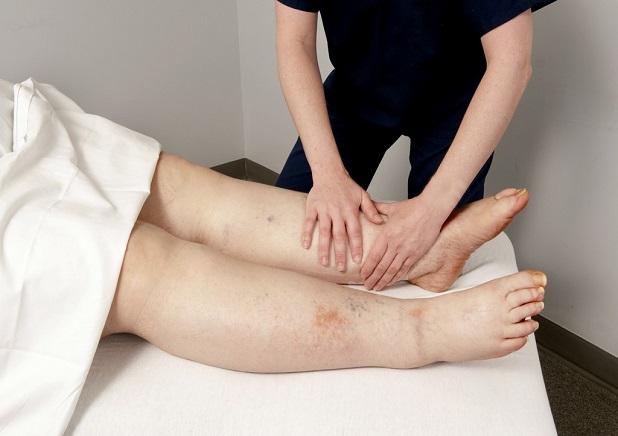 lymphedema-symptoms-treated