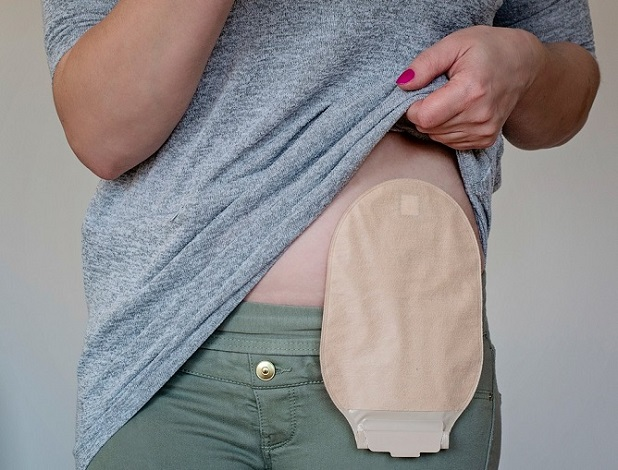 easy-steps-properly-change-ostomy-pouch